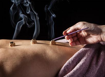 pratique de la moxibustion médecine chinoise